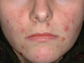 young person with acne