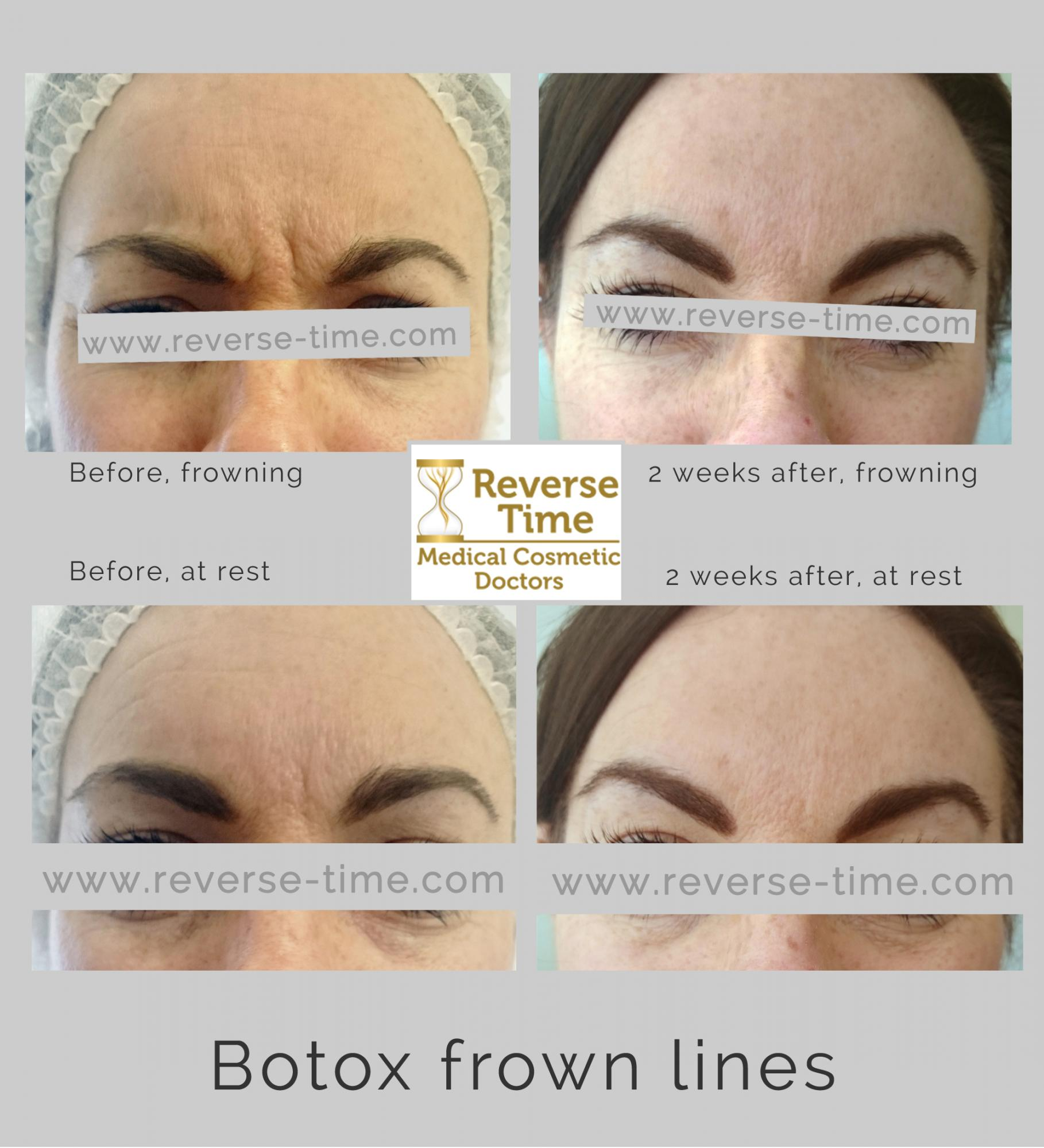 frown lines before after botox photos