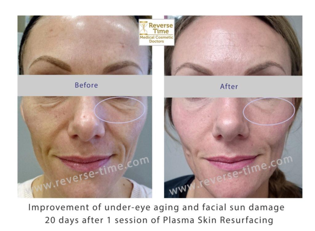 Plasma skin regeneration